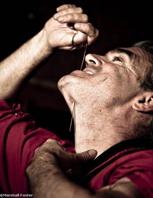 10. Tim Cridland มนุษย์ผู้ไม่มีความเจ็บปวด1