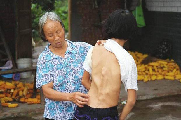 Ni-Min-stone-man-syndrome-401806
