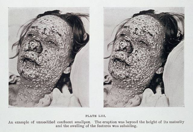 pustular_eruption_of_smallpox_on_face_wellcome_l0032959