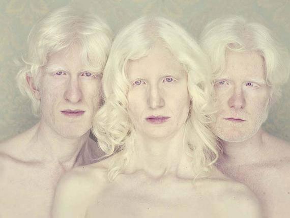albino4